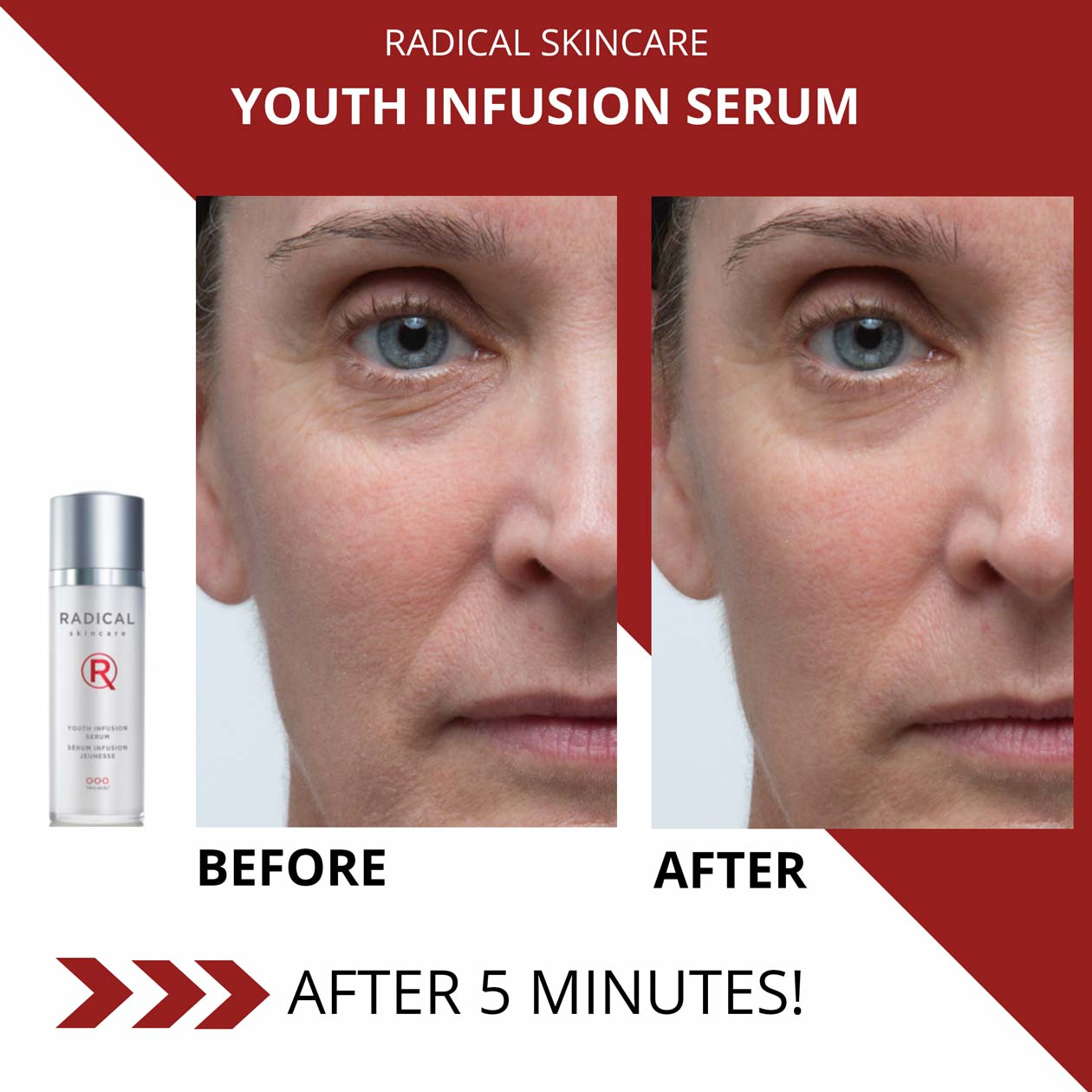 Youth Infusion Serum Before After 5 Minutes